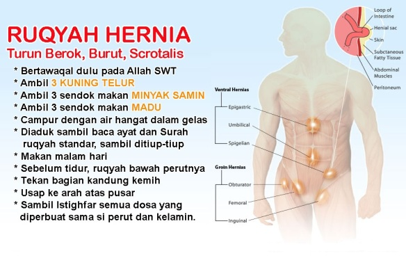 minyak samin obat untuk hernia